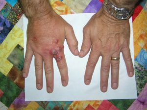 The hands of Jim Craig in 2009 after cleaning Palythoas off of a shelf in a frag tank. More here.