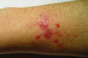 Mycobacterium marinum infection of the arm of a fish-tank worker. Piersimoni and Scarparo 2009.