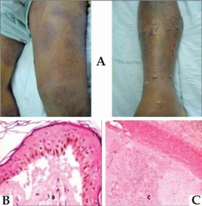 A) Pictures of skin lesions, multiple tense bullae and intense edema, with about twelve hours of evolution. Histopathological findings from leg and spleen. (B) Presence of gram-negative bacilli in the subepidermal space. (C) Presence of gram-negative bacilli inside the splenic small vessels. (H&E, 400X). Was later identified as Vibrio vulnificus. França et al., 2013