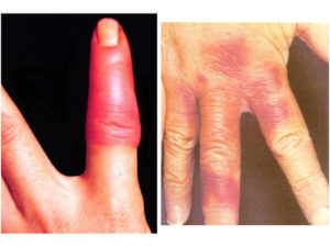 Erysipelothrix rhusiopathiae. Left: purplish red, indurated skin lesions on fingers or hands. Right: treated with penicillin